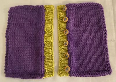 The Hole Truth: How to Knit Perfect Buttonholes and Bands